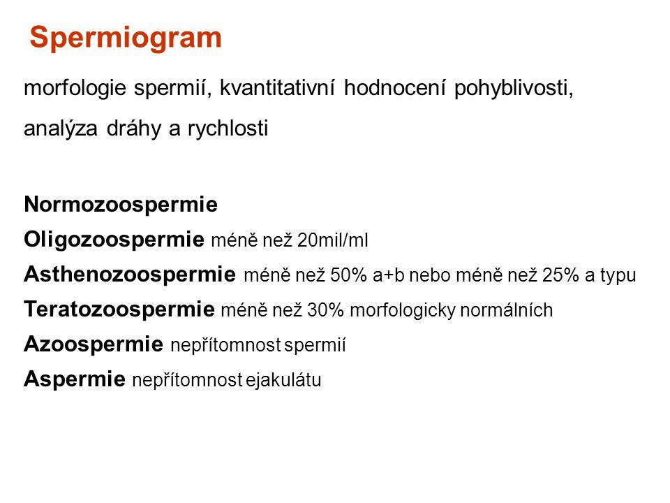 Spermiogram morfologie spermií, kvantitativní hodnocení pohyblivosti, analýza dráhy a rychlosti. Normozoospermie.