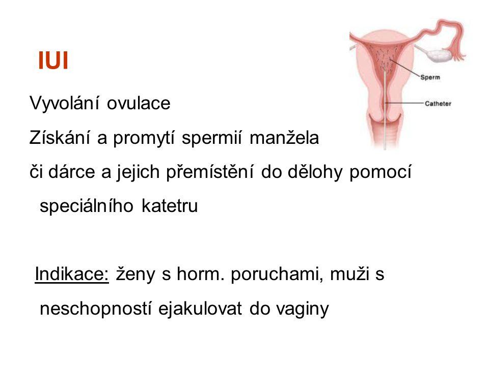 IUI Vyvolání ovulace Získání a promytí spermií manžela