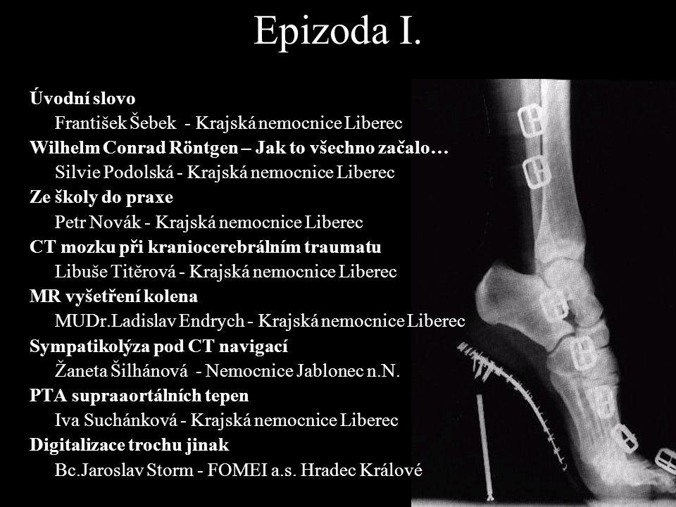 Epizoda I. Úvodní slovo František Šebek - Krajská nemocnice Liberec