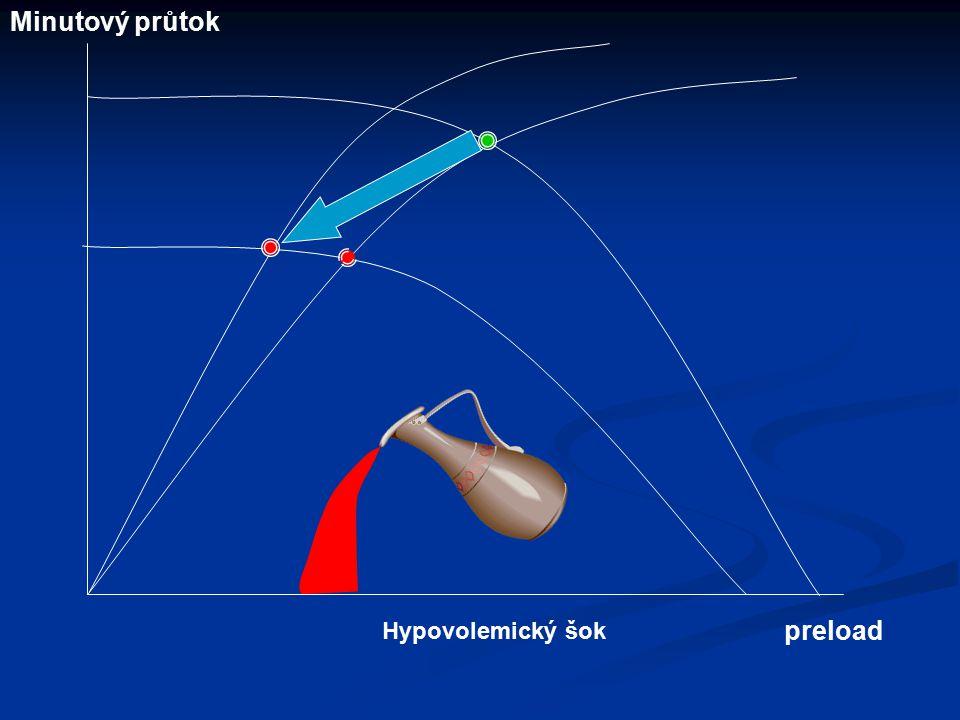 Minutový průtok Hypovolemický šok preload
