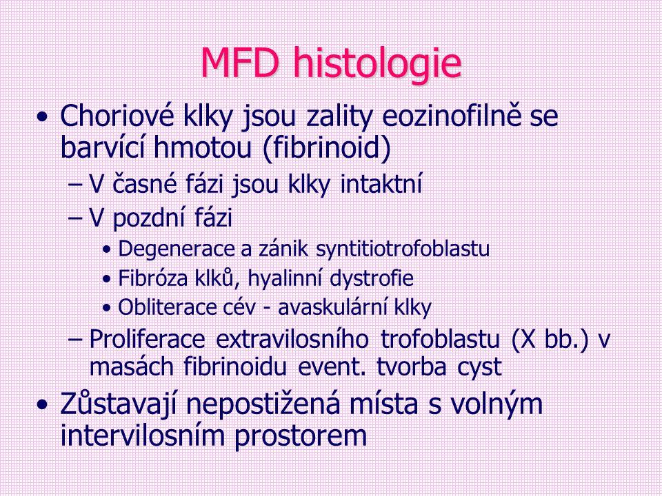 MFD histologie Choriové klky jsou zality eozinofilně se barvící hmotou (fibrinoid) V časné fázi jsou klky intaktní.