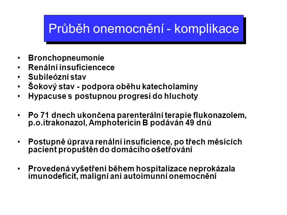 Průběh onemocnění - komplikace