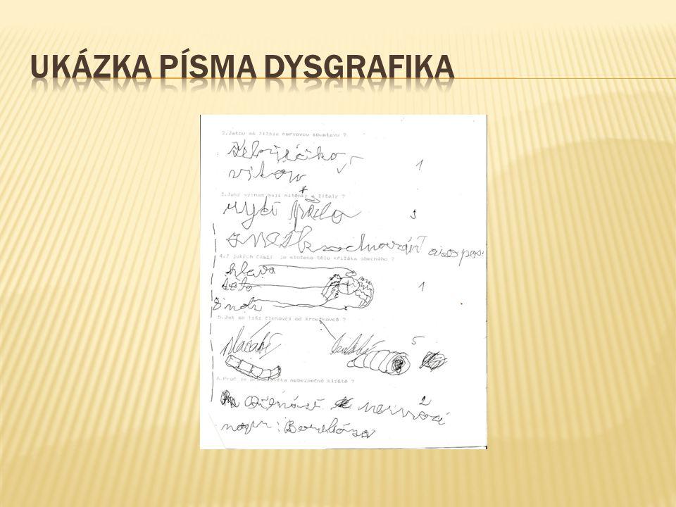 UKÁZKA PÍSMA DYSGRAFIKA