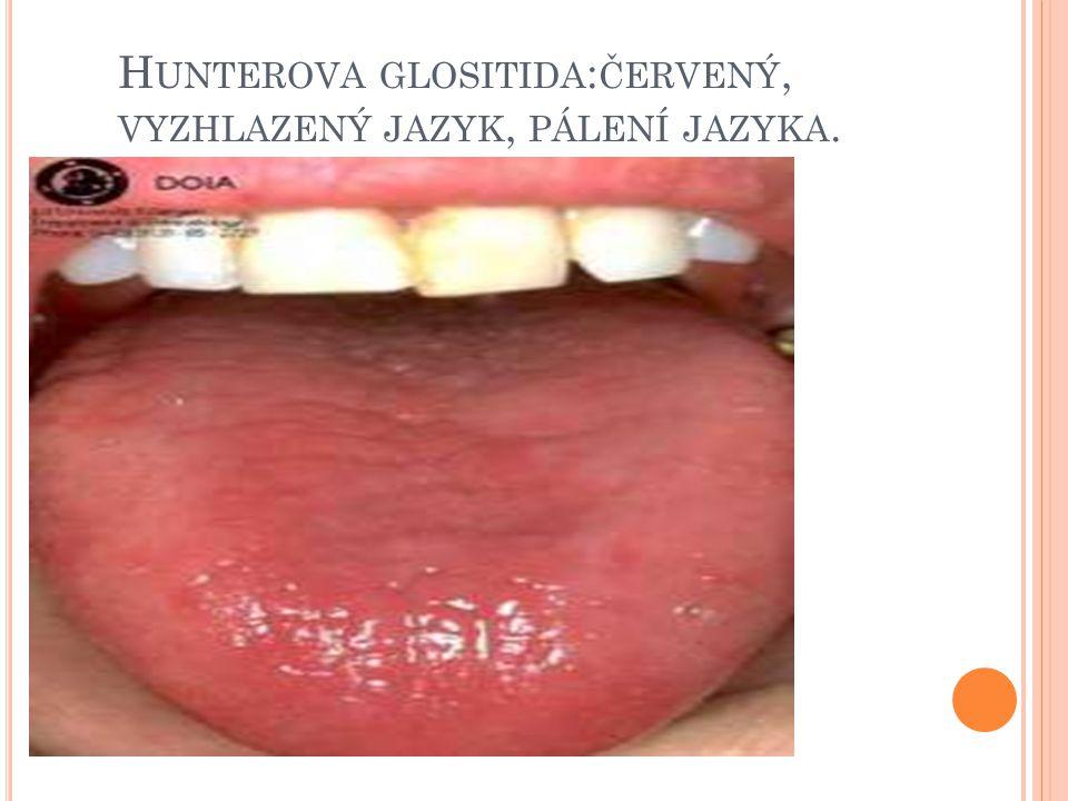 Hunterova glositida:červený, vyzhlazený jazyk, pálení jazyka.