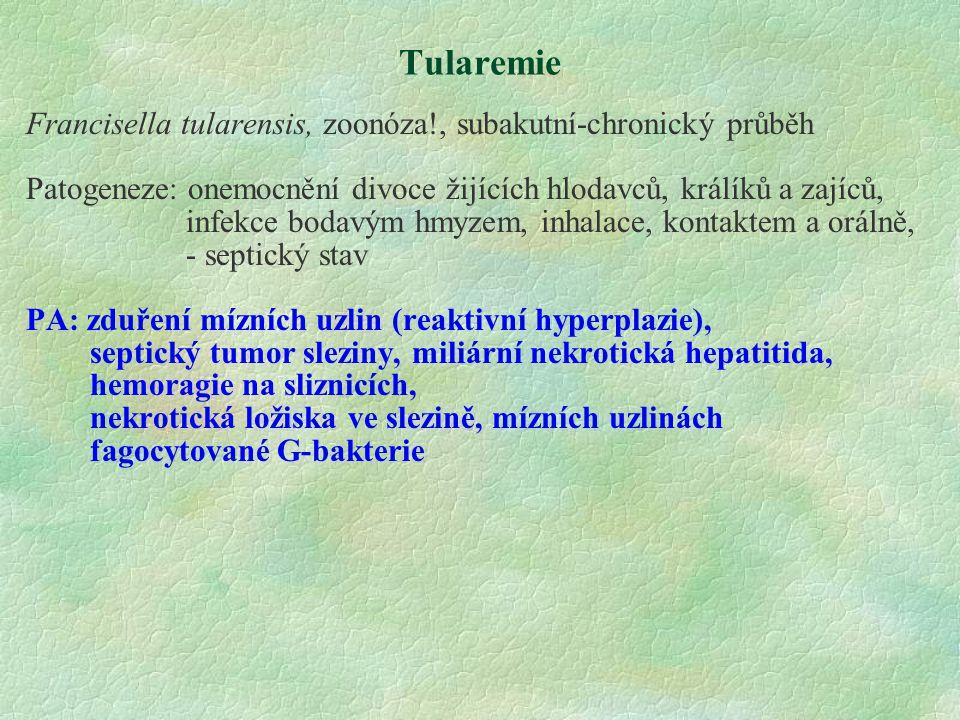 Tularemie Francisella tularensis, zoonóza!, subakutní-chronický průběh