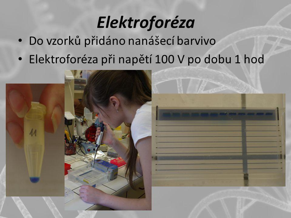 Elektroforéza Do vzorků přidáno nanášecí barvivo