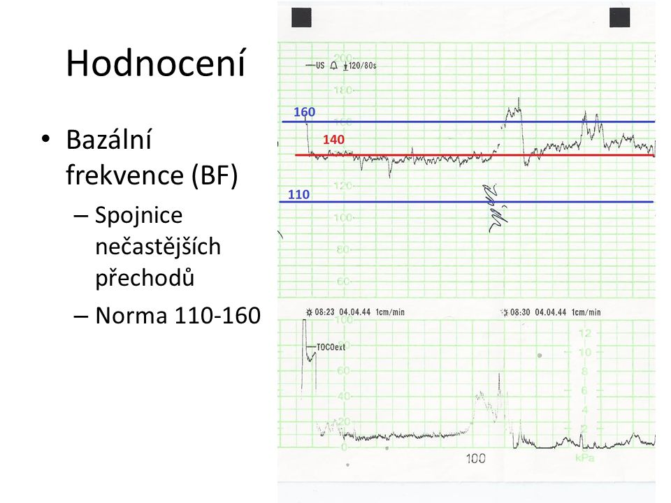 Hodnocení Bazální frekvence (BF) Spojnice nečastějších přechodů