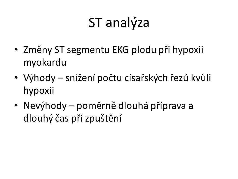 ST analýza Změny ST segmentu EKG plodu při hypoxii myokardu