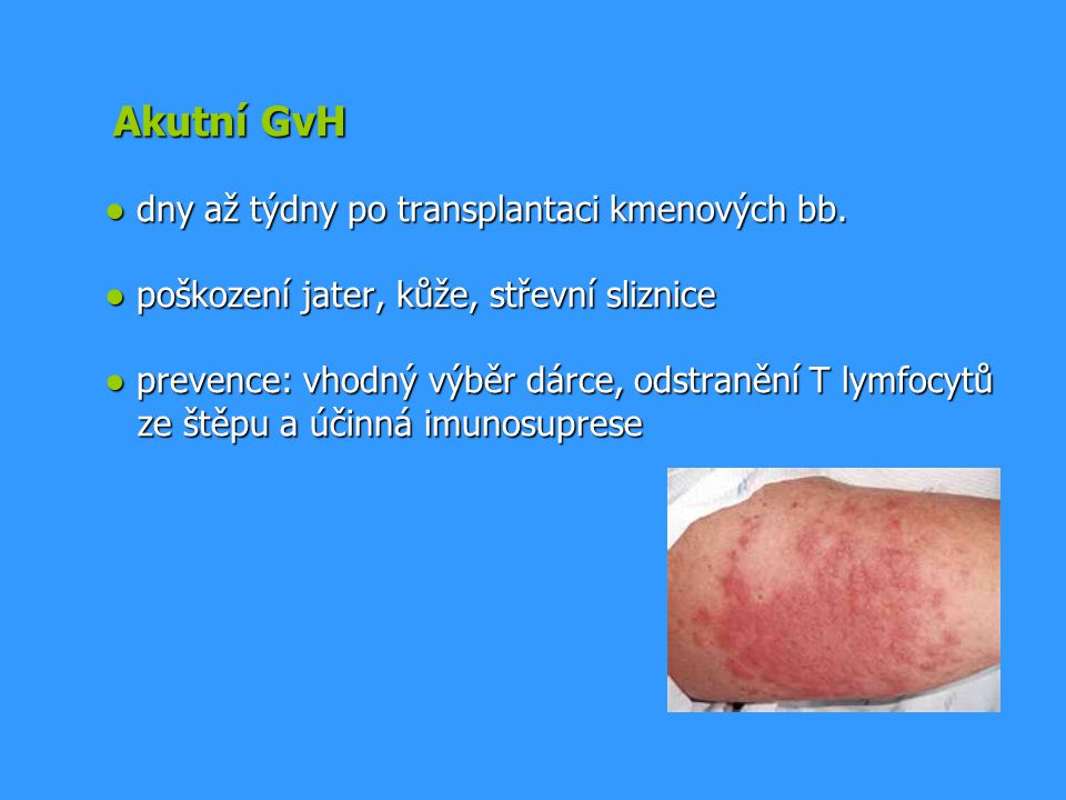 Akutní GvH ● dny až týdny po transplantaci kmenových bb