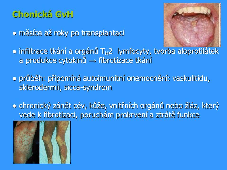 Chonická GvH ● měsíce až roky po transplantaci ● infiltrace tkání a orgánů TH2 lymfocyty, tvorba aloprotilátek a produkce cytokinů → fibrotizace tkání ● průběh: připomíná autoimunitní onemocnění: vaskulitidu, sklerodermii, sicca-syndrom ● chronický zánět cév, kůže, vnitřních orgánů nebo žláz, který vede k fibrotizaci, poruchám prokrvení a ztrátě funkce