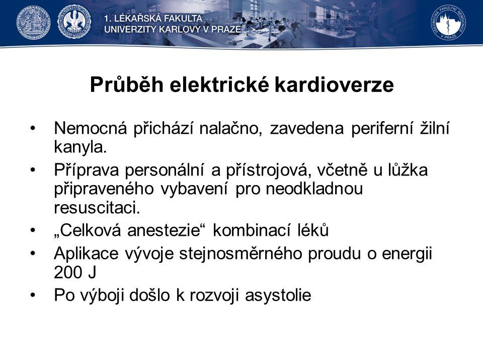 Průběh elektrické kardioverze