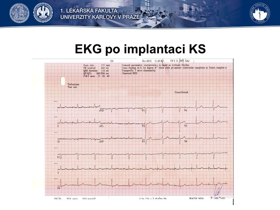 EKG po implantaci KS