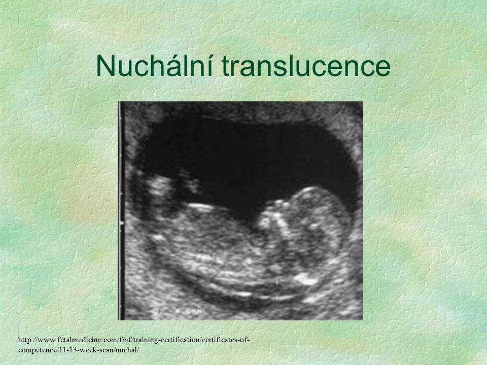 Nuchální translucence