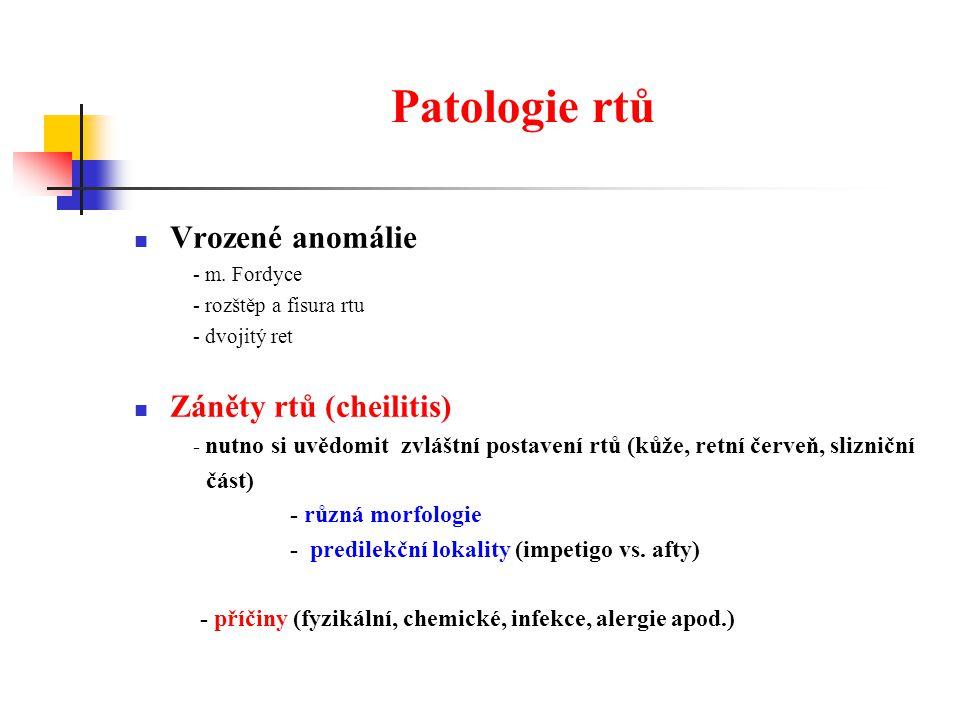 Patologie rtů Vrozené anomálie Záněty rtů (cheilitis) část)