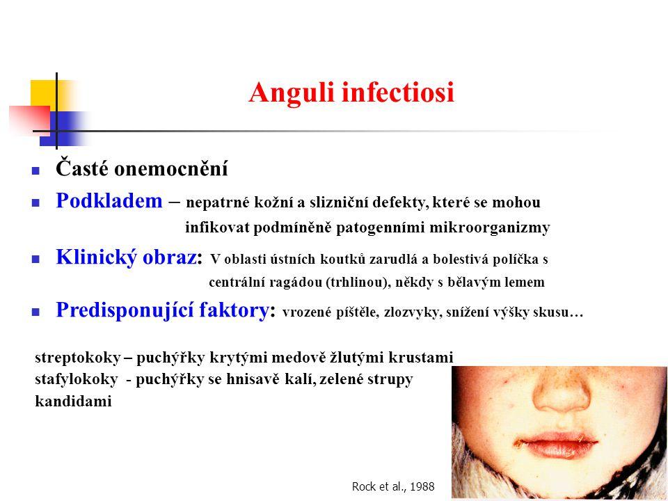 Anguli infectiosi Časté onemocnění