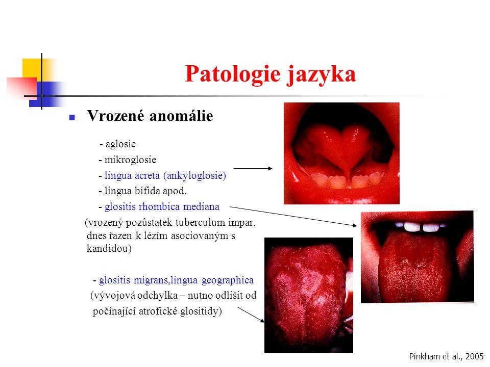 Patologie jazyka Vrozené anomálie - mikroglosie