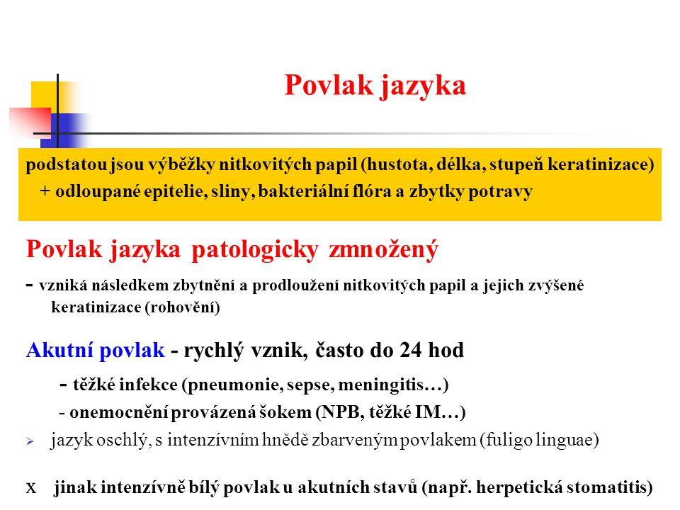 Povlak jazyka Povlak jazyka patologicky zmnožený