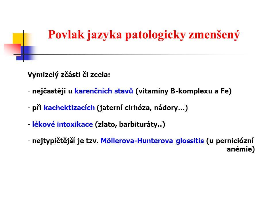 Povlak jazyka patologicky zmenšený