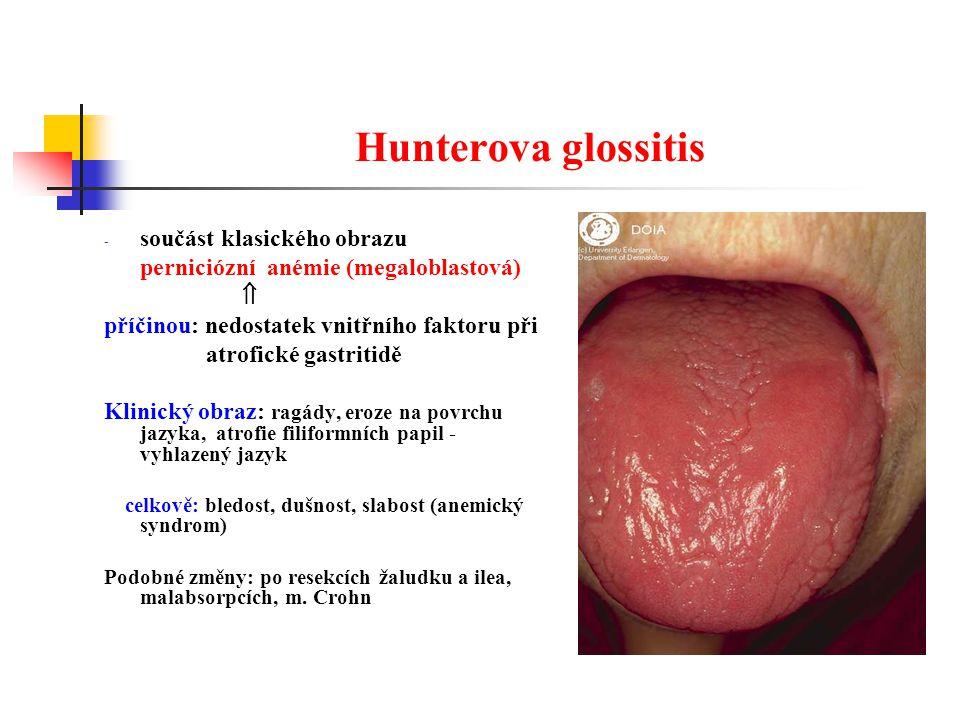 Hunterova glossitis součást klasického obrazu