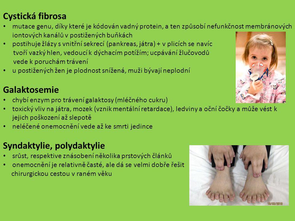 Syndaktylie, polydaktylie