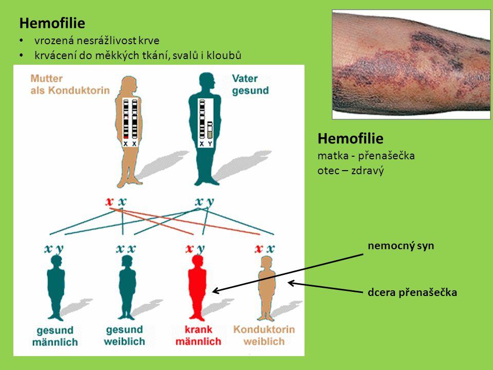 Hemofilie Hemofilie vrozená nesrážlivost krve