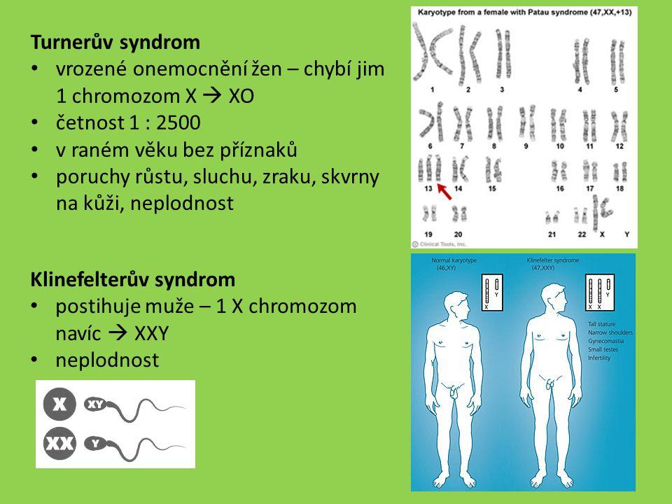 Turnerův syndrom vrozené onemocnění žen – chybí jim 1 chromozom X  XO. četnost 1 : 2500. v raném věku bez příznaků.