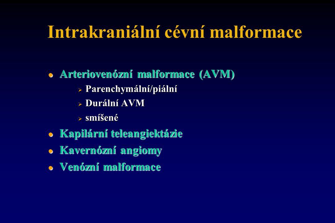 Intrakraniální cévní malformace