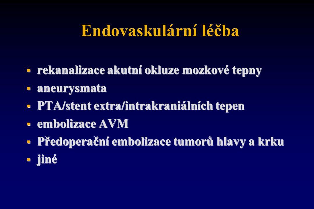 Endovaskulární léčba rekanalizace akutní okluze mozkové tepny