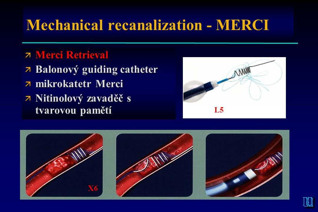 Mechanical recanalization - MERCI