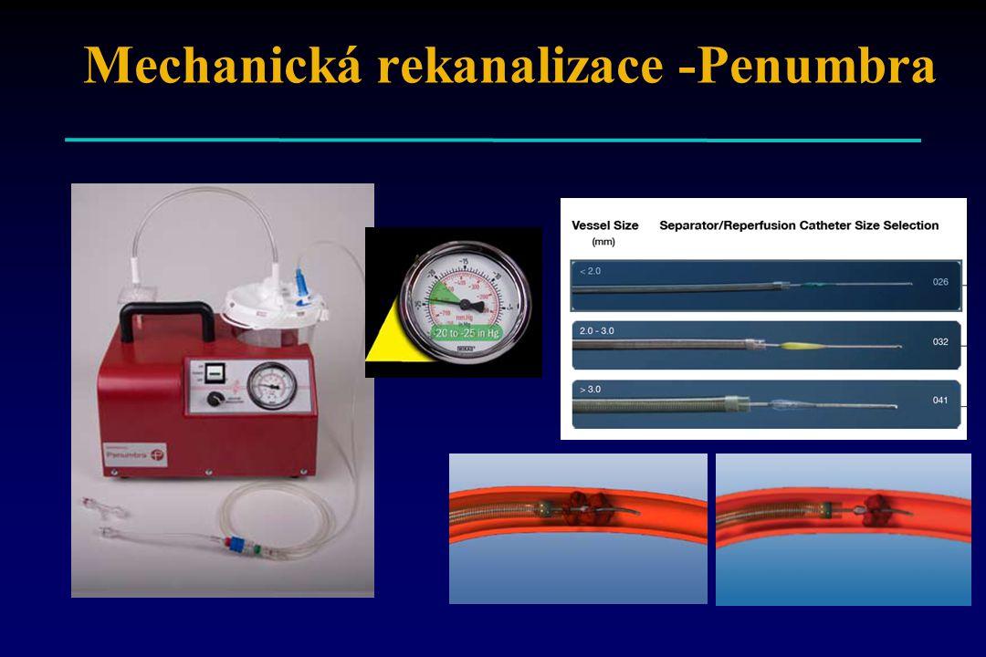 Mechanická rekanalizace -Penumbra