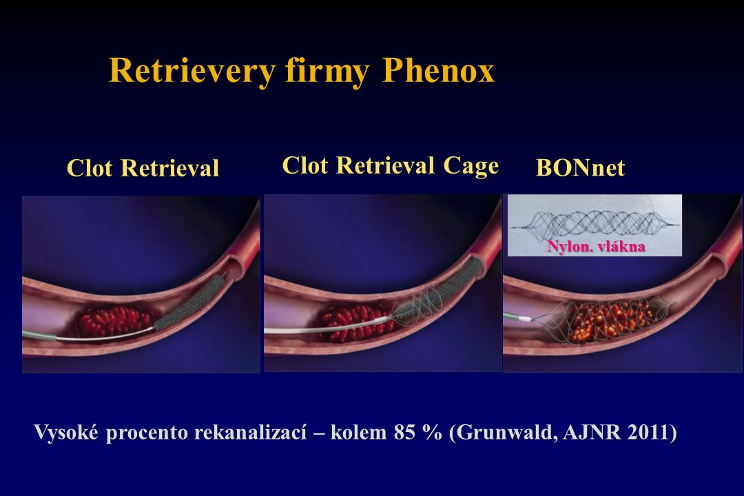Retrievery firmy Phenox