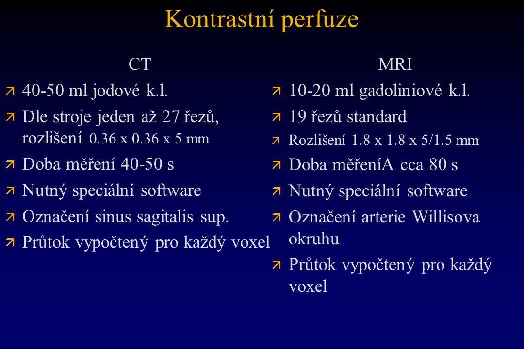 Kontrastní perfuze CT 40-50 ml jodové k.l.