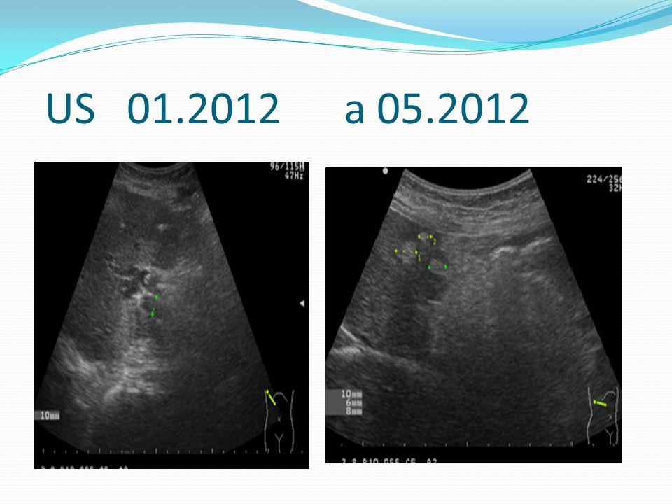 US 01.2012 a 05.2012