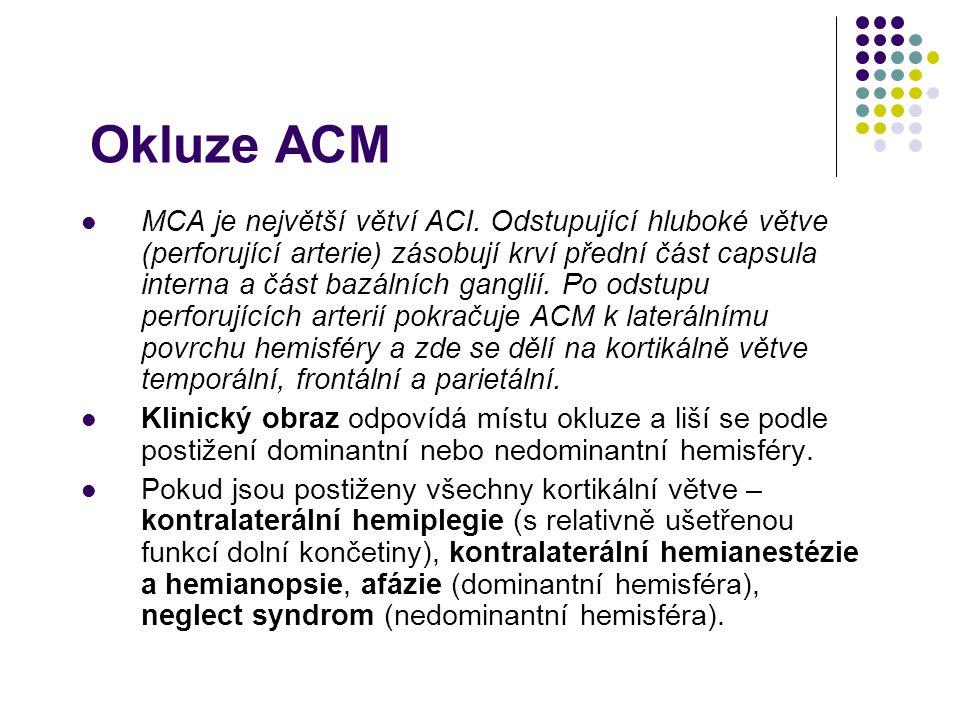 Okluze ACM