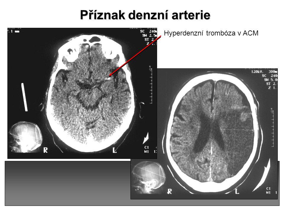 Příznak denzní arterie
