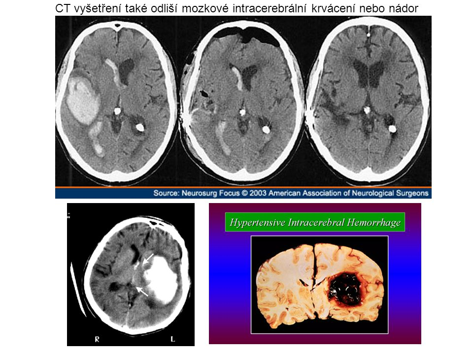 CT vyšetření také odliší mozkové intracerebrální krvácení nebo nádor