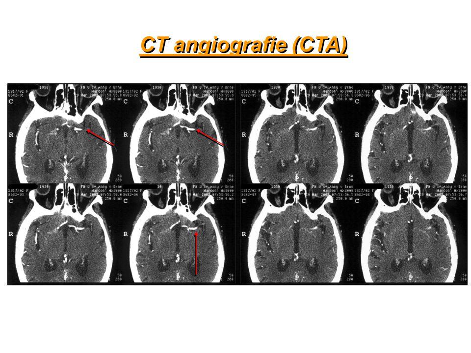 CT angiografie (CTA)