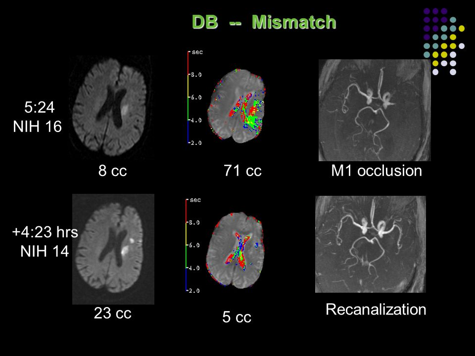 DB -- Mismatch 5:24 NIH 16 8 cc 71 cc M1 occlusion +4:23 hrs NIH 14
