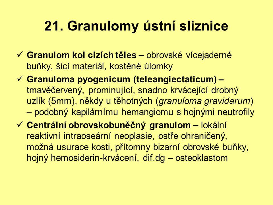 21. Granulomy ústní sliznice