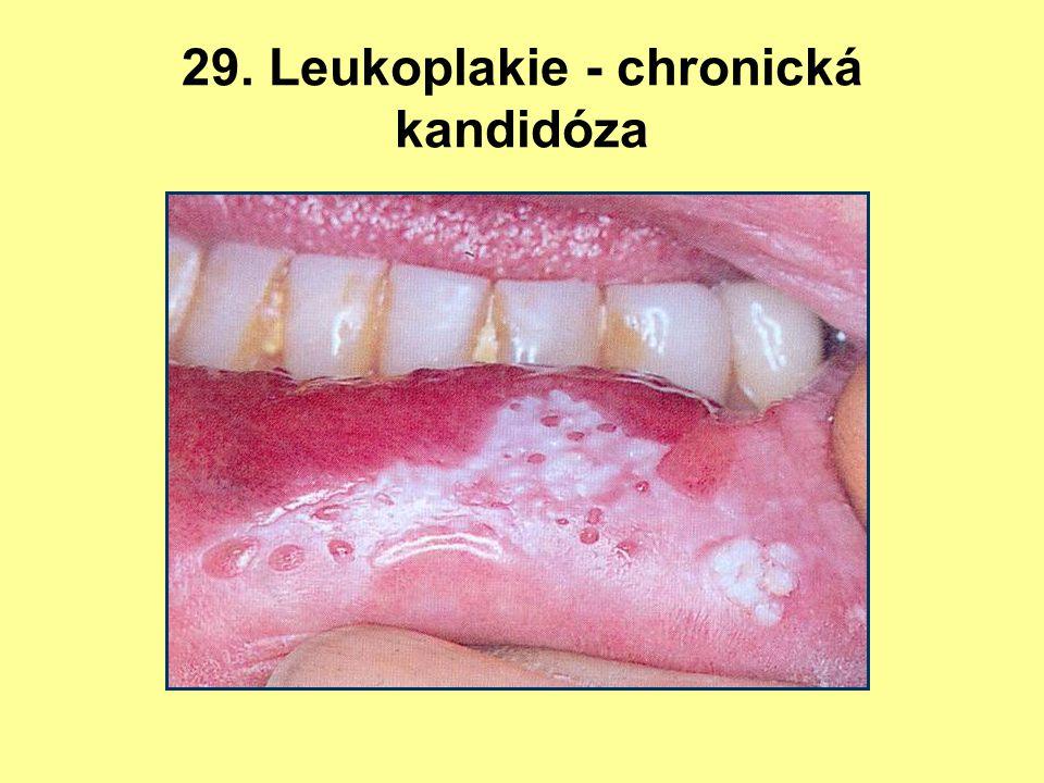 29. Leukoplakie - chronická kandidóza