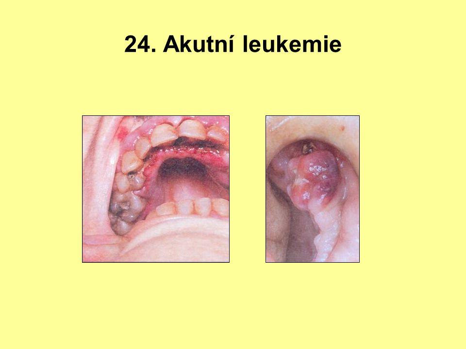 24. Akutní leukemie