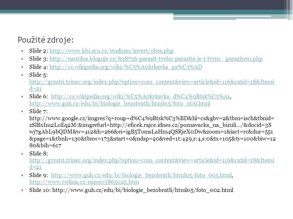 Použité zdroje: Slide 2: http://www.kbi.zcu.cz/studium/invert/obra.php