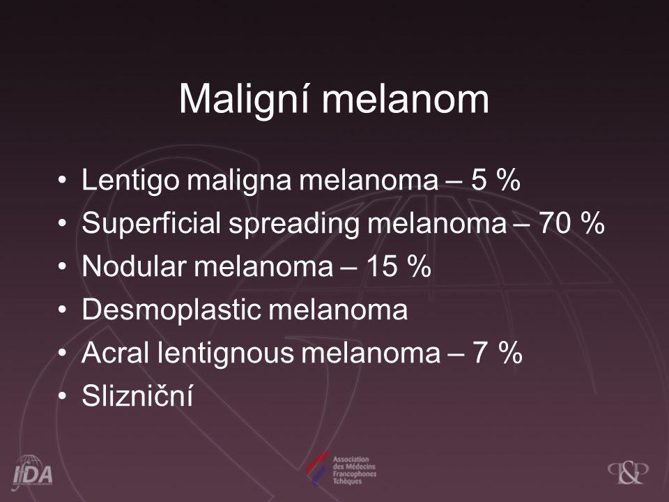 Maligní melanom Lentigo maligna melanoma – 5 %