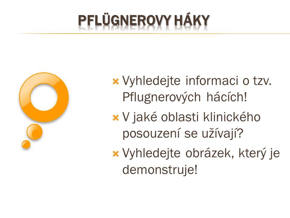 Pflügnerovy háky Vyhledejte informaci o tzv. Pflugnerových hácích!