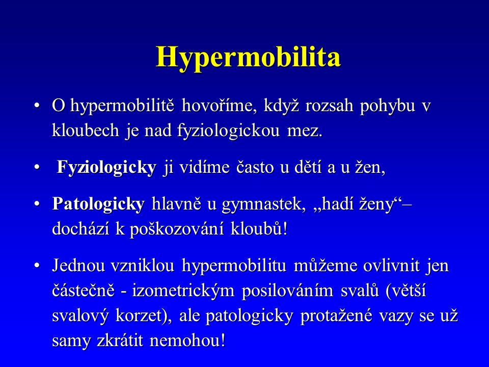 Hypermobilita O hypermobilitě hovoříme, když rozsah pohybu v kloubech je nad fyziologickou mez. Fyziologicky ji vidíme často u dětí a u žen,