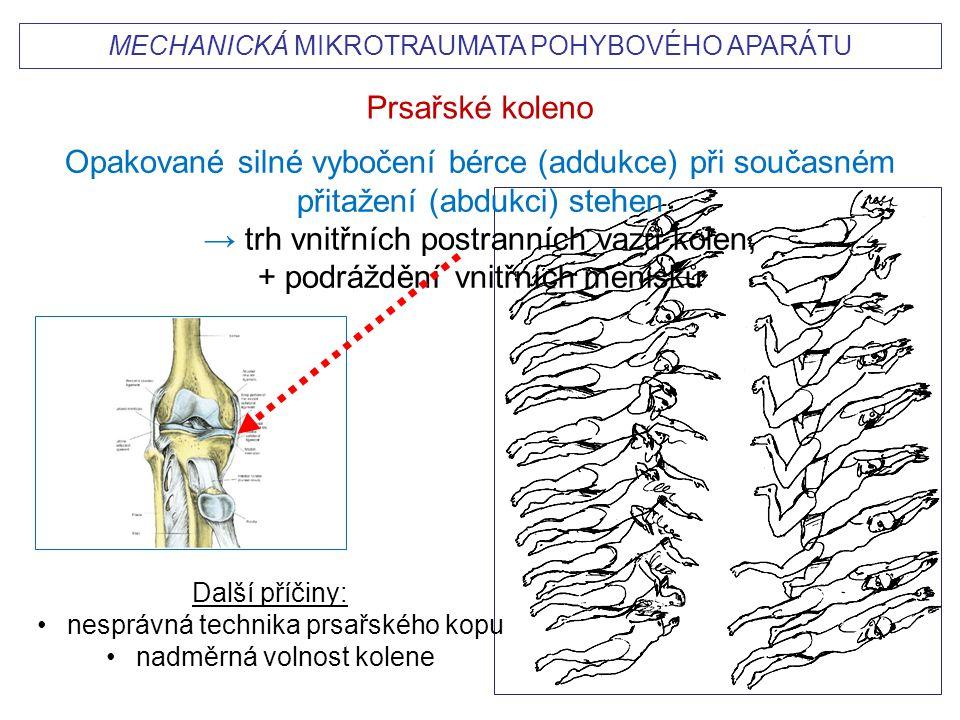 → trh vnitřních postranních vazů kolen, + podráždění vnitřních menisků
