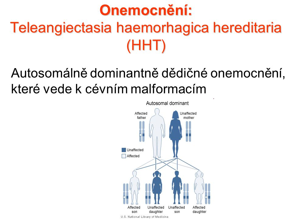 Onemocnění: Teleangiectasia haemorhagica hereditaria (HHT)