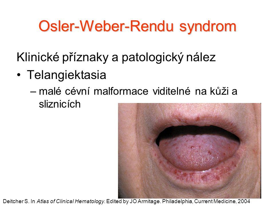 Osler-Weber-Rendu syndrom