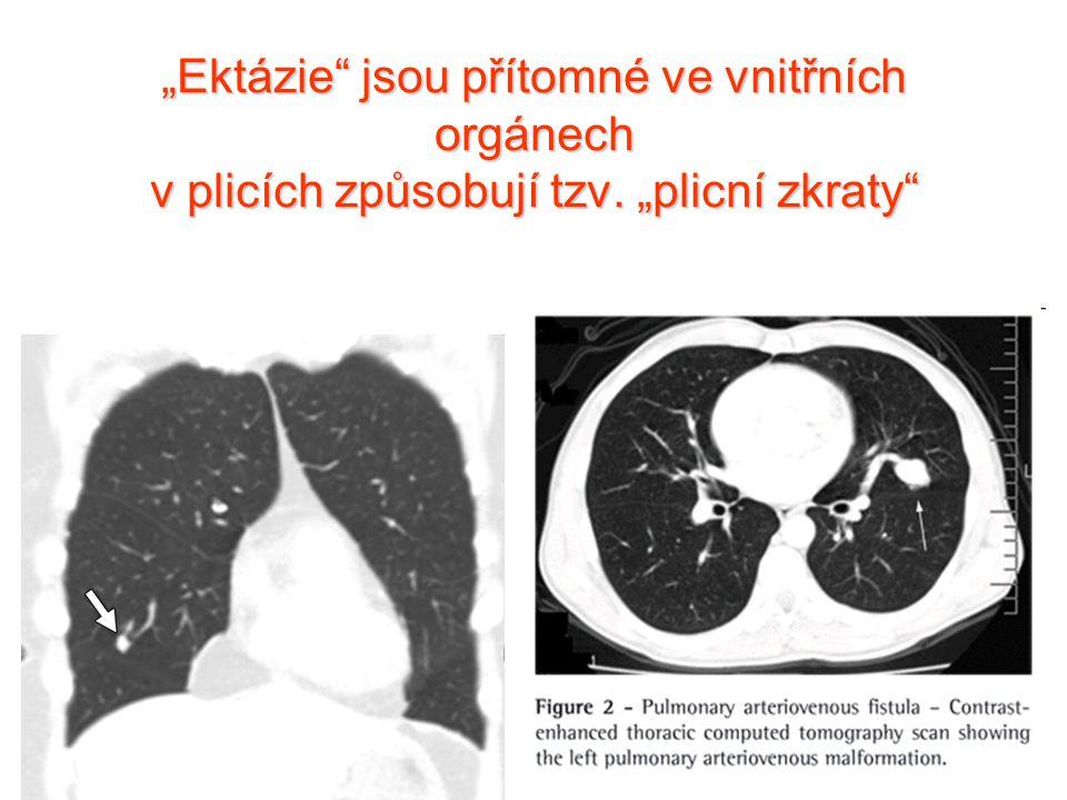 """""""Ektázie jsou přítomné ve vnitřních orgánech v plicích způsobují tzv"""