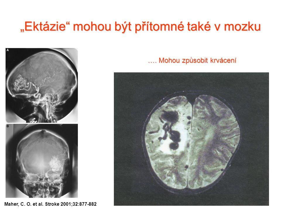 """""""Ektázie mohou být přítomné také v mozku"""